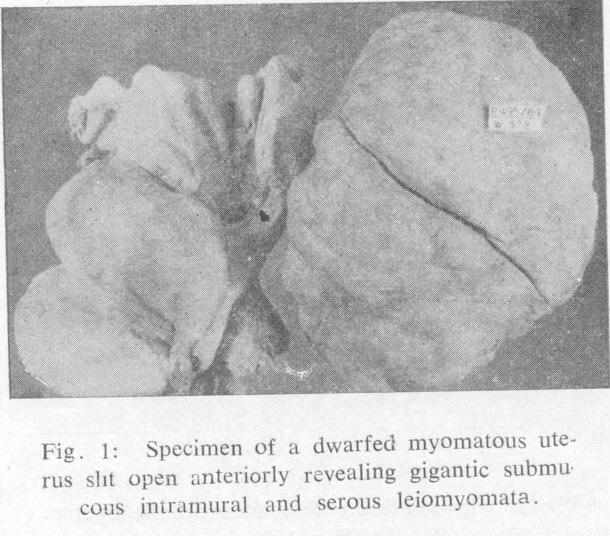 probable leiomyomatous with slight adenomyosis