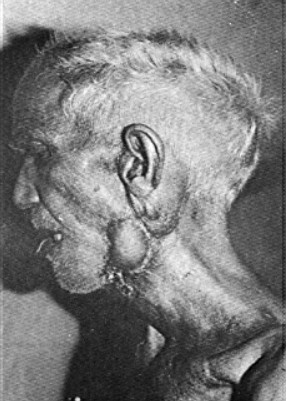 Photograph of a patient showing flap in a skin defect over the mandibular area 3 weeks after surgery.