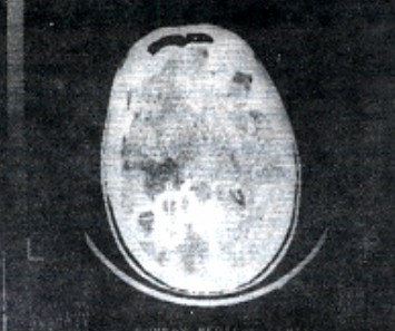 CT scan showing the multiple confluent ring enhancing lesions with surrounding brain oedema.