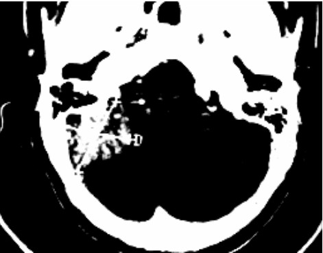 Contrast enhanced CT scan showing the tumour