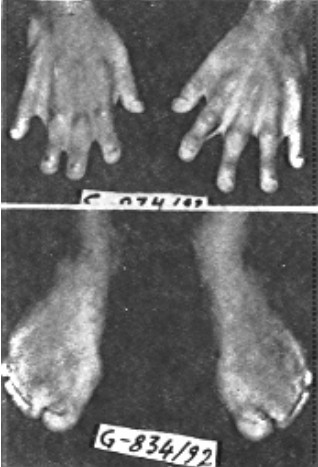 Marked soft tissue syndactyly of both hands and feet.