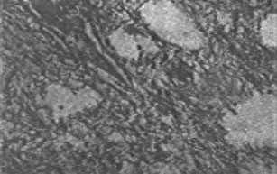 Microphotograph shows tumour composed of spindle shaped cells with bipolar fibrillary processes, displaying a coarsely reticulated pattern (HE X 190).