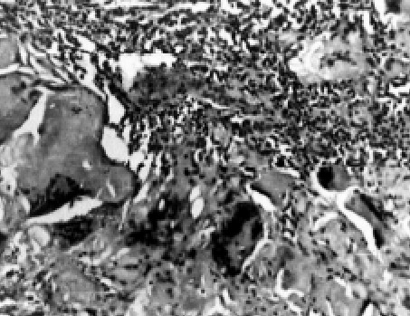 Benign osteoblastoma : Irregular poorly mineralised osteoid tissue with osteoclastic giant cells. H & E x 100 (x2.5)