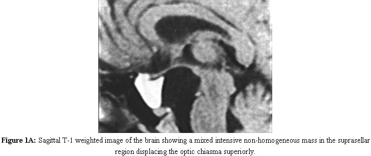 Sagittal T-1 weighted image of the brain showing a mixed intensive non-homogeneous mass in the suprasellar region displacing the optic chiasma superiorly.