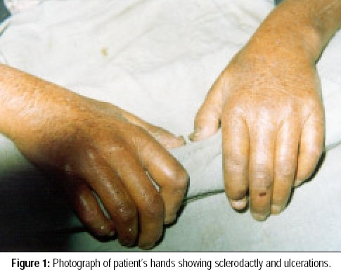 Photograph of patient's hands showing sclerodactly and ulcerations.