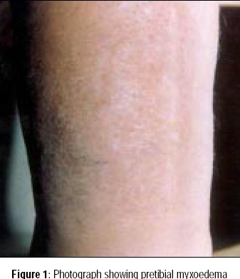 Photograph showing pretibial myxoedema