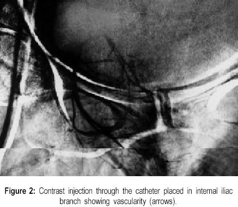 Contrast injection through the catheter placed in internal iliac branch showing vascularity (arrows).