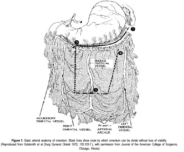 Basic arterial anatomy of omentum. Black lines show route by which omentum can be divide without loss of viability. (Reproduced from Goldsmith et al (Surg Gynecol Obstet 1972; 135:103-7.), with permission from Journal of the American College of Surgeons, Chicago, Illinois)