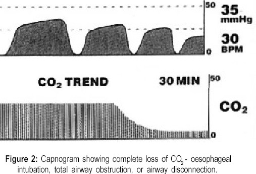 Capnogram showing complete loss of CO2 - oesophageal intubation, total airway obstruction, or airway disconnection.