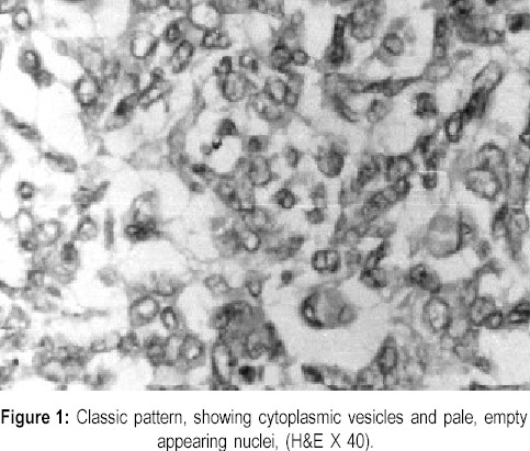 Classic pattern, showing cytoplasmic vesicles and pale, empty appearing nuclei, (H&E X 40).
