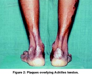 Plaques overlying Achilles tendon.