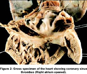 Gross specimen of the heart showing coronary sinus thrombus (Right atrium opened).