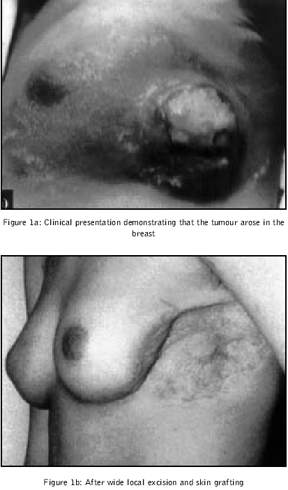 non-hodgkins lymphoma metastizing to breast