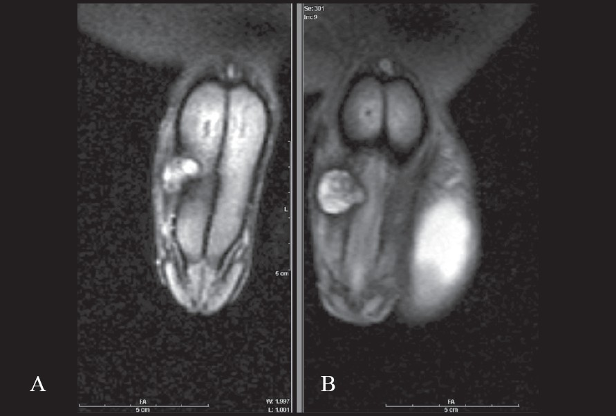 Figure 1: Coronal T2W MR of penis showing - A. Breach in the tunica albugenia (hypointense line) with associated hematoma in the right corpora cavernosum with adjacent soft tissue edema. B) Involvement of corpora spongiosum on the right side