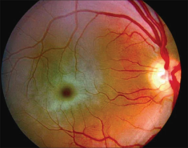 Figure 2: Cherry red spot seen in a case of Tay sachs disease