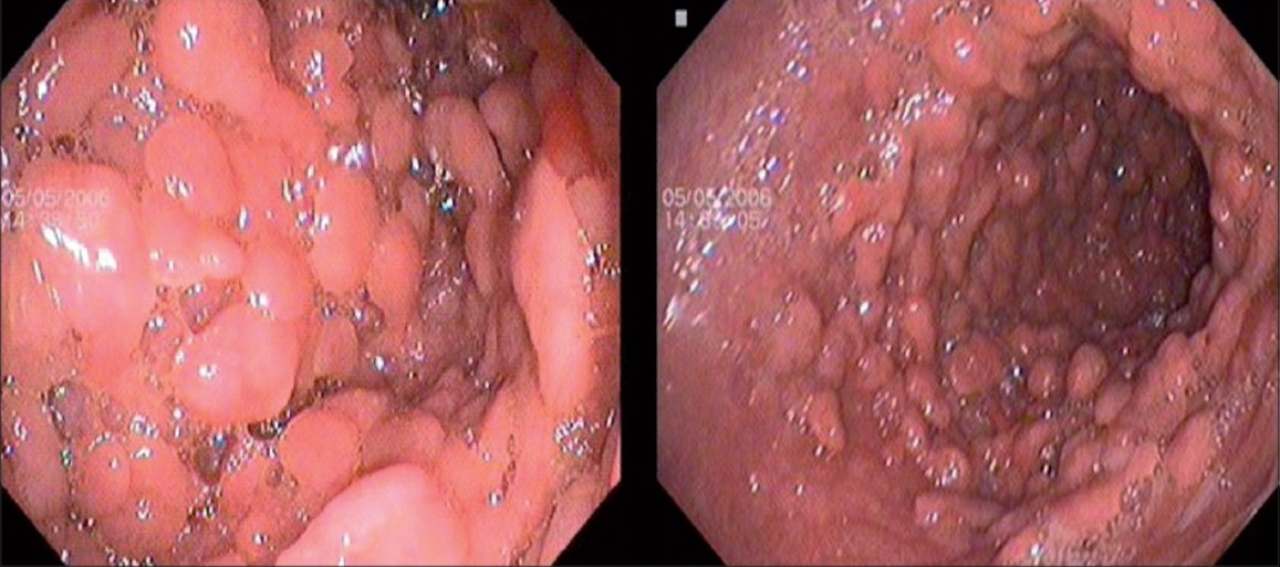Figure 2: Gastric body and antrum carpeted with multiple sessile polyps