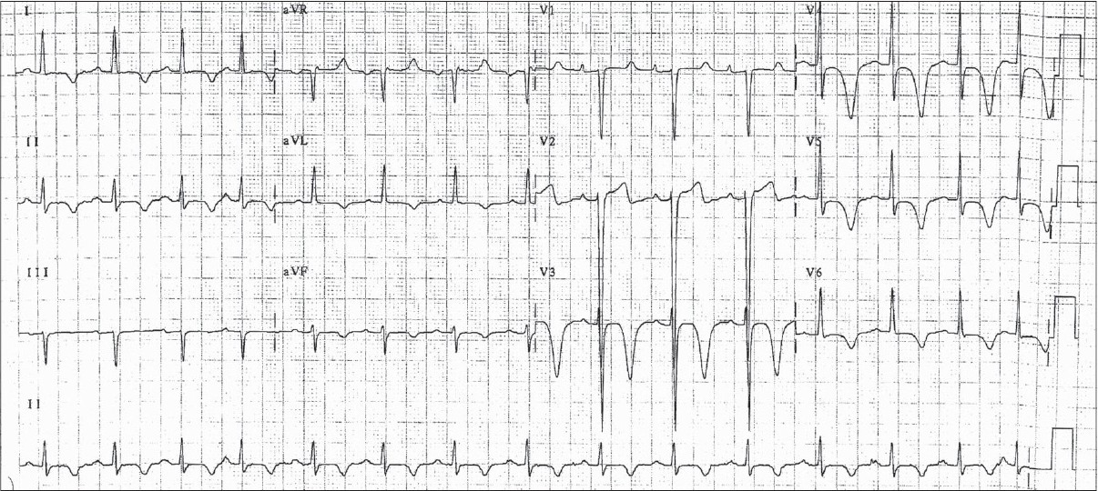 Figure 2: ECG with diffuse T-wave inversions