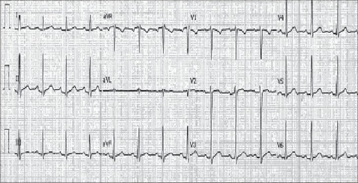 Figure 2: Discharge ECG showing complete resolution of initial cardiac abnormalities