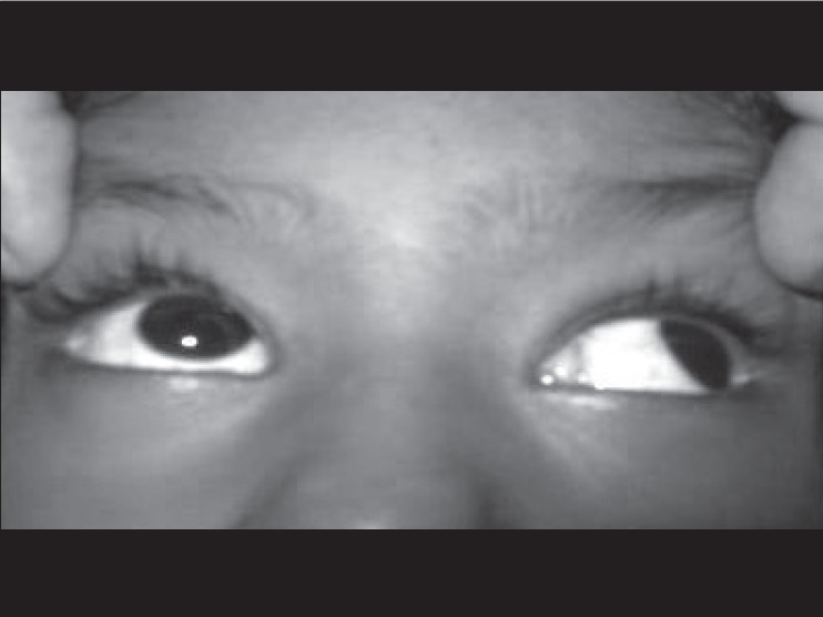 Figure 1: Demonstrating paresis of the adductor and upward gaze in the right eye
