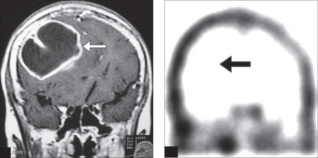 Figure 2 :(a) Coronal slice of contrast-enhanced MRI scan showing a tuberculoma with peripheral contrast enhancement in the right posterior frontal lobe
