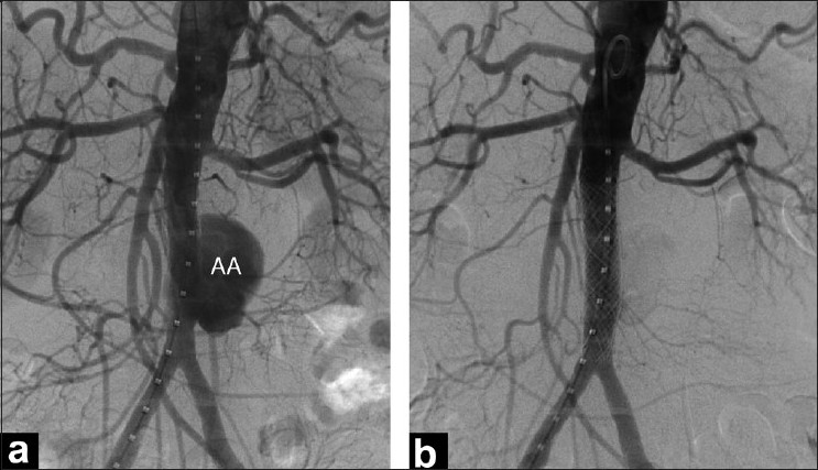 Figure 2 :Digital subtraction angiography of abdominal aorta; (a) Baseline angiogram demonstrating saccular infra-renal aortic aneurysm (AA); (b) Post-procedure angiogram showing exclusion of aneurysm by an aortic stent-graft