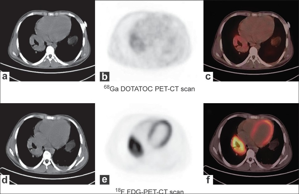 Figure 1 :Upper panel: Computed tomography; (a) Positron emission tomography; (b) and PET-CT; (c) image of 68Ga DOTATOC scan showing mass in the right lower lobe of the lung with no significant radiotracer uptake. Lower panel: Computed tomography; (d) Positron emission tomography; (e) and PET-CT; (f) image of 18F-FDG scan showing an intense FDG uptake in the mass