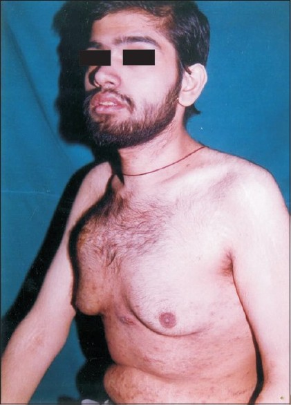 Figure 1 :Patient with gynecomastia and swellings of chest wall and epigastrium