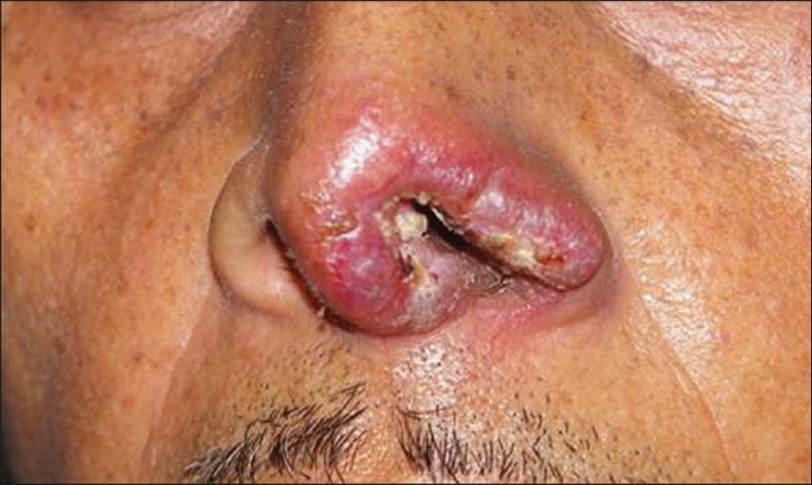 Figure 2: Multiple red nodular lesions of histoplasmosis over the tip of nose