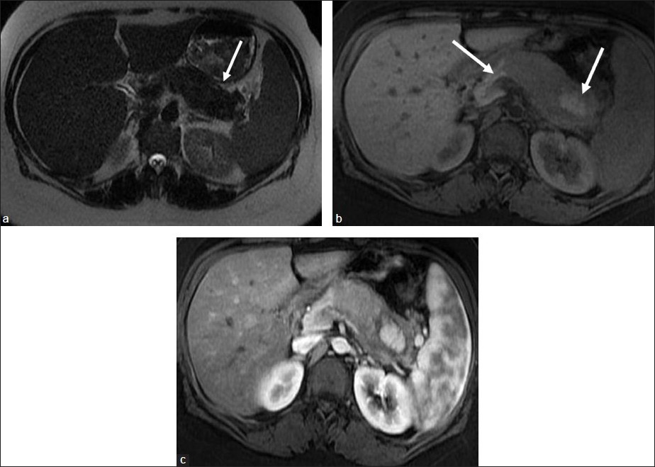 Figure 6 : MR pancreas. (a) Axial T2 MR of pancreas showing thickened body and tail of pancreas (white arrow). (b) Axial T1 MR and (c) Gadolinium-enhanced T1 MR of pancreas showing thick exudates surrounding the body and tail of pancreas with preservation of the normal high T1 signal of pancreas and normal parenchymal enhancement within head and island of pancreatic tissue in tail of pancreas (white arrows) with the classical appearance of autoimmune pancreatitis