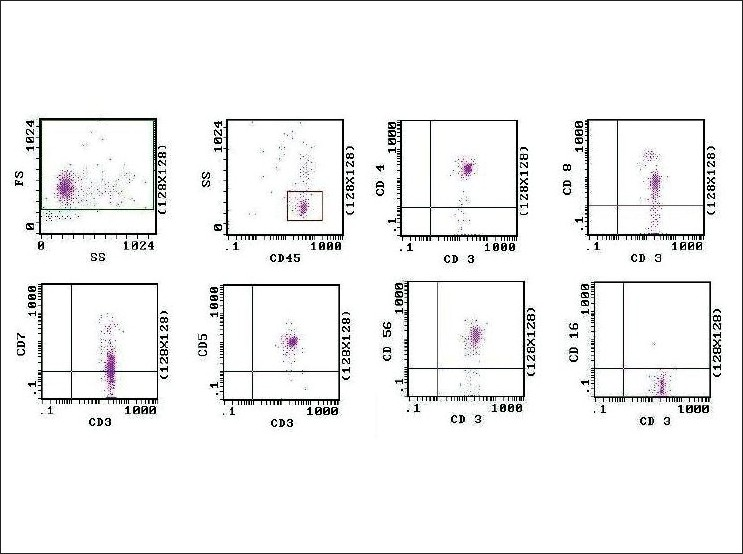 Figure 2 :Dot plot histograms of flow cytometric analysis show mainly mature lymphoid cells with bright CD45 positivity. T-cell markers were positive- CD3 (bright), CD4 (bright), CD5 (moderately bright), CD8 (dim), CD7 (variable from dim to negative). These mature lymphoid cells were also positive for CD56 (bright) and negative for CD16
