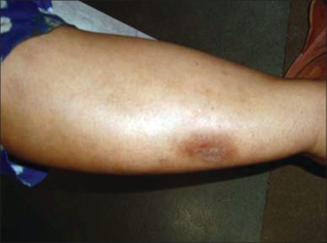 Figure 2 :Photoallergic lesion on the forearm