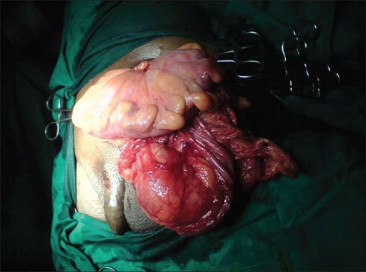 Huge Scrotum Inguinal Hernia