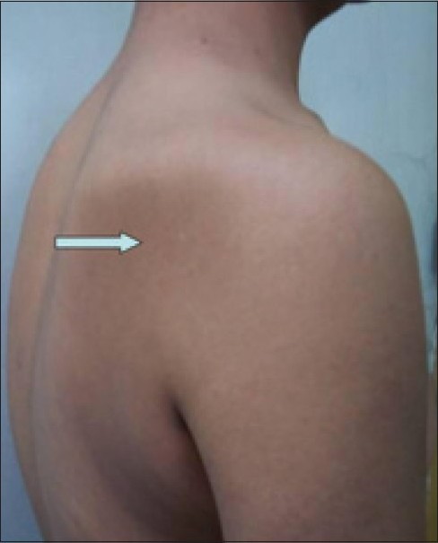Figure 1: Photograph revealing significant wasting of right shoulder musculature