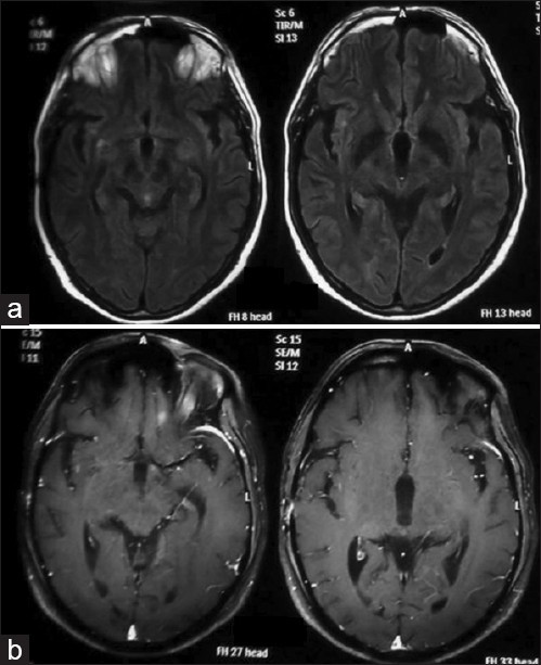 Figure 3: Repeat MRI brain flair axial (a) and gadolinium- enhanced T1-weighted (b) images showing marked resolution in granulomas with steroid therapy