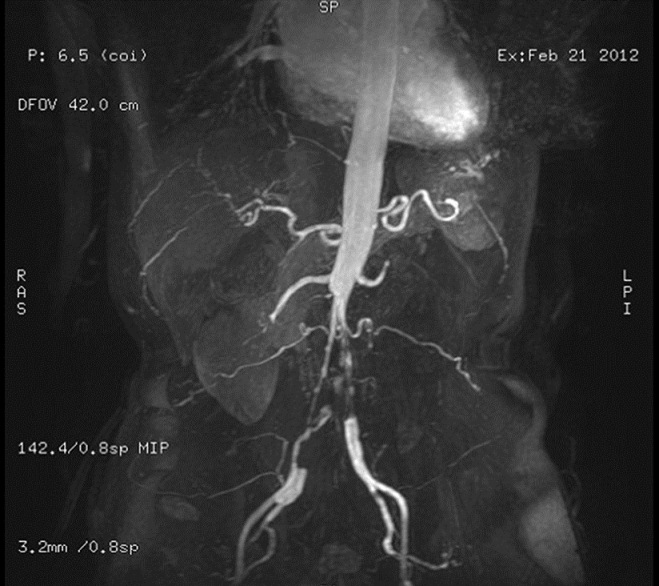 Figure 1: MRA showing occlusion of the distal abdominal aorta and left distal renal artery, involving the right iliac artery, and left renal atrophy