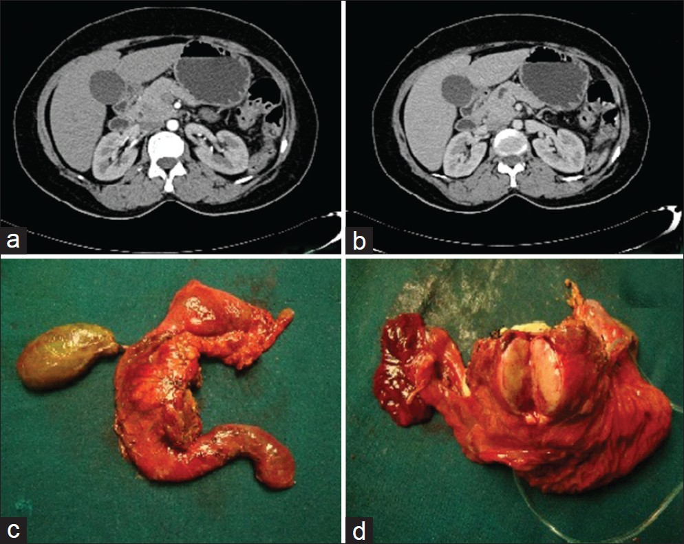 An unusual cause of hypokalemic paralysis Lakshmi C P ...