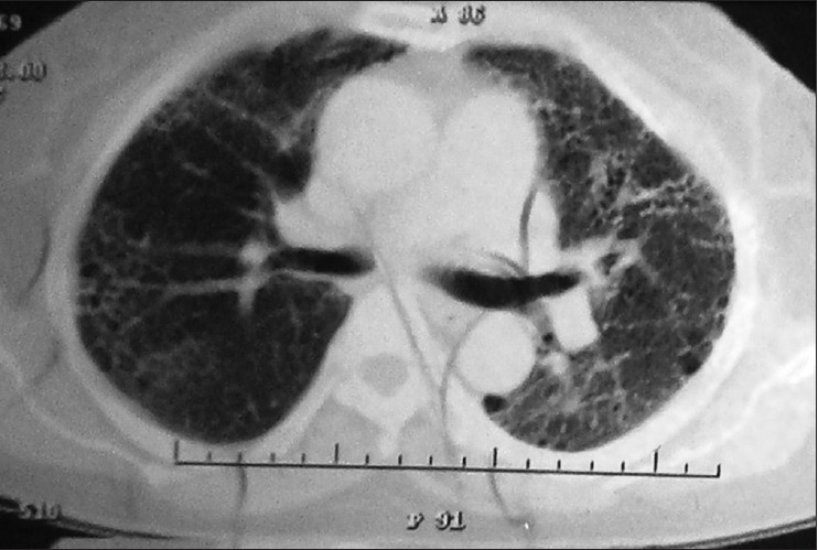 Figure 1: HRCT‑thorax, October 2010, showing bilateral inter‑.and intra‑lobular septal thickening, subpleural honeycombing, tractional bronchiectasis, reduced lung volume, and patchy ground glass opacities with intervening normal lung, giving a variegated appearance, mainly in bilateral lower lobes