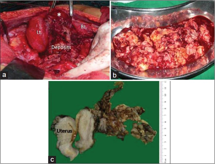Figure 1: (a) Intra‑operative exploratory laparotomy revealing bilateral ovarian masses (left and right) with residual deposits in pouch of Douglas. Uterine fundus (asterix) is noted; (b) Tray displaying cystic and solid masses from the pouch of Douglas and (c) Gross specimen displaying tumor nodules mainly in relation to one‑sided adnexa with infiltration into the posterior wall of uterus