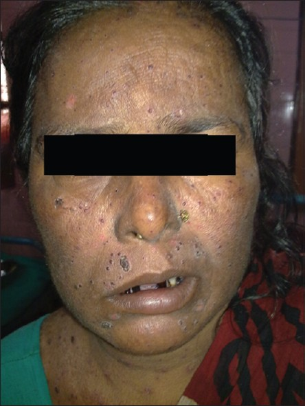 Figure 9: Facial palsy in a case of chickenpox
