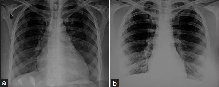 Figure 1: (a) Chest radiograph at admission showing cardiomegaly with pulmonary venous congestion and (b) normalization of heart size after treatment