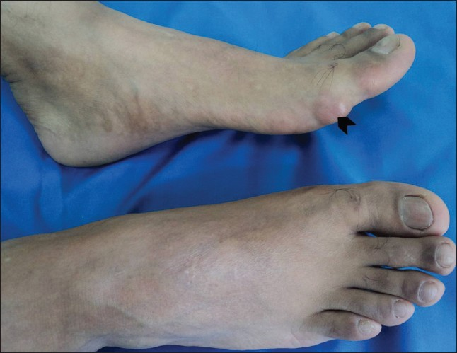 Figure 1: Tophus‑like swelling at the base of great toe