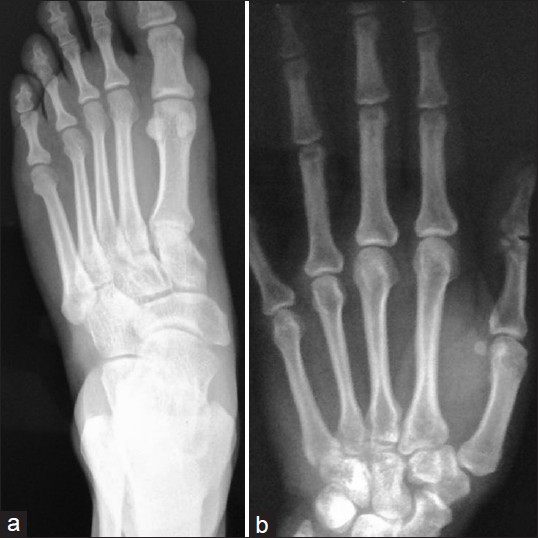 Figure 3: Radiographs of (a) left foot; (b) hand shows increased soft tissue shadow in the regions of great toe MTP joint and MCP joints (2<sup>nd</sup>, 3<sup>rd</sup> and 4<sup>th</sup>) with no bony lesion