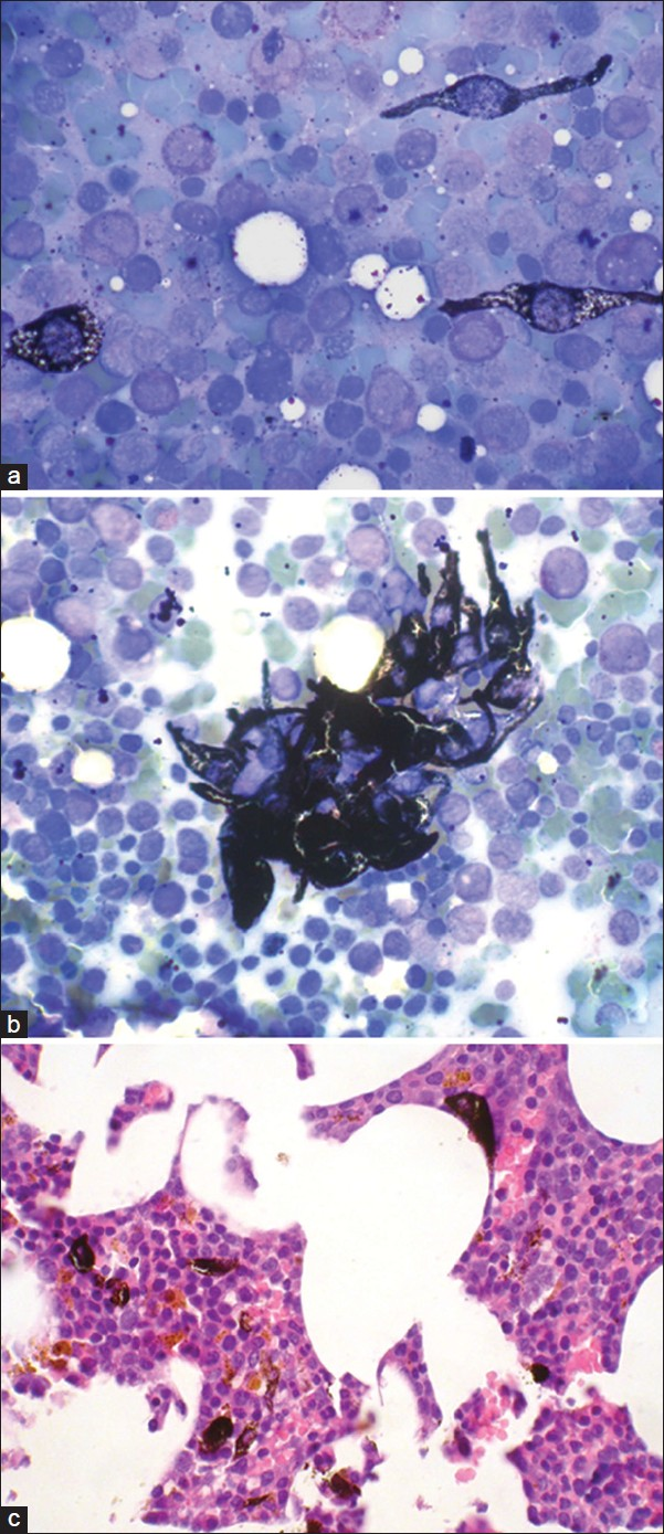 Figure 1: (a and b) bone marrow smears show polymorphic population of normal hematopoietic cells with darkly pigmented malignant cells; (c) Bone marrow biopsy shows polymorphic normocellular marrow with clusters of dark pigmented cells with prominent nucleoli