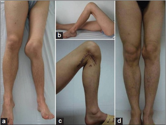 Figure 4: Preoperative and postoperative appearance Preoperative appearance: (a) Swelling and valgus of the left knee; (b) Flexion only can approach to 90 degrees. Two years follow-up: (c) Flexion can approach to 120 degrees; (d) Mechanical axis of the distal femur realigned