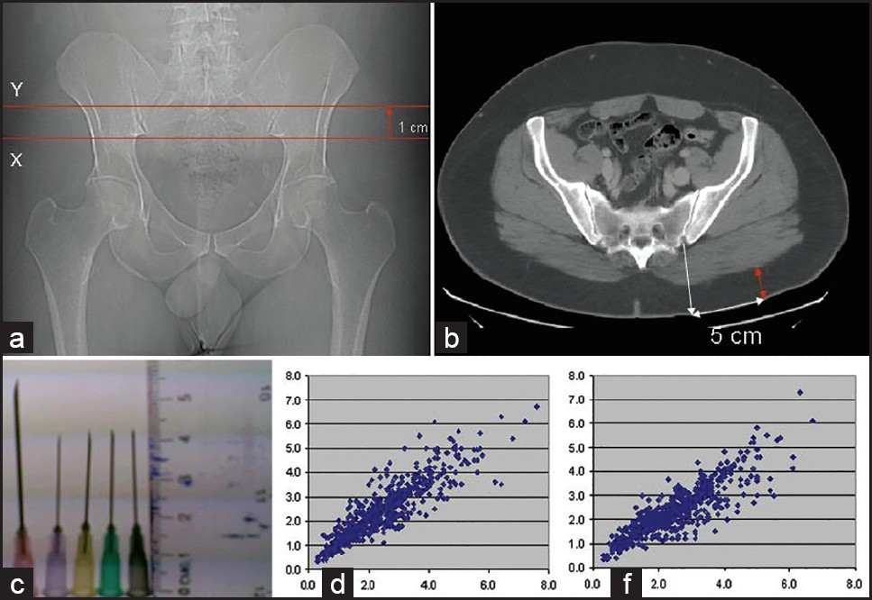 Figure 2: Localization of the gluteal site localization adopted from Canadian Journal of Association of Radiologist (CARJ) (a and b). Section which is 1 cm above the lowermost point of the SI joint is identified (Y in Figure a). Corresponding axial section at the Y location showing site of injection which is 5 cm away from the SI joint. The subcutaneous fat thickness measured (red double arrow). (c) Length of the commonly used needle in our hospital. (d) The correlation between the fat thicknesses measured in the dorsogluteal site and venterogluteal site. (f) The correlation between the fat thicknesses measured by the dorsoglteal site localization method and CAJR method