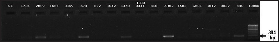 Figure 3: Electrophoretogram of the amplification of Toll like receptor (TLR) 3 gene. (Lane 1) Negative control. (Lanes 2-17) Amplification of the TLR 3 gene in ARPE cells on challenging with herpes simplex virus isolates. (Lane 18) DNA ladder (100 bp)