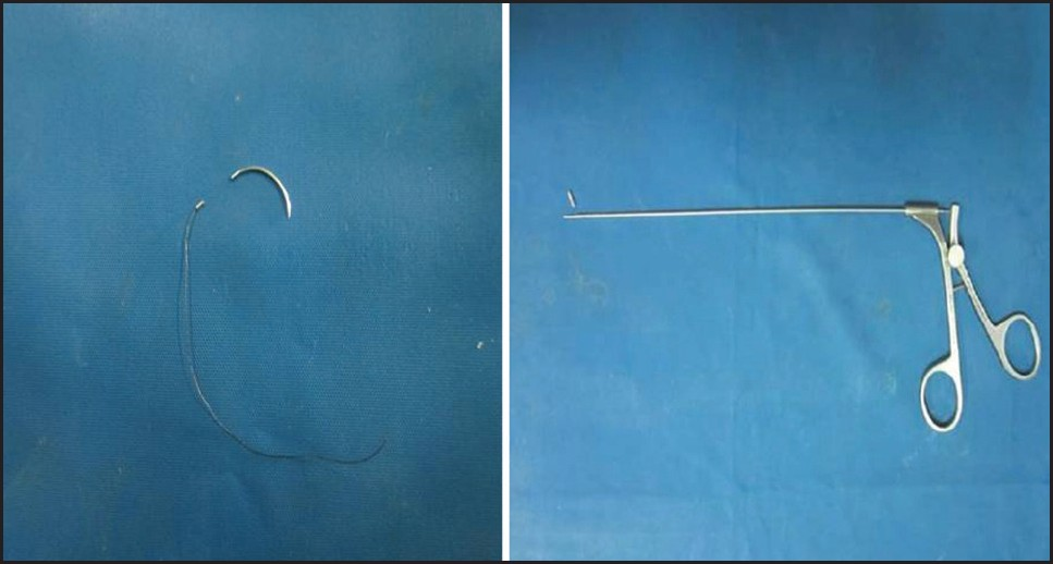Figure 2: (Left-half) Broken fragment with rest of the needle (after retrieval). (Right-half) Broken fragment of laparoscopic needle holder with rest of the instrument (after retrieval)