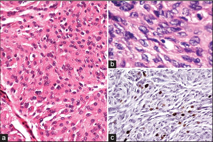 Figure 1: Transitional meningioma. (a and b) Tumors cells arranged in whorls (Hematoxylin and eosin,×100& x400); (c) Ki67 labeling index 1.5% (HRP-Polymer, × 100)