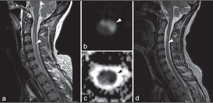 Figure 1: The sagittal T2-weighted image (a) shows high signal intensity in the cervical spinal cord predominantly in its anterior aspect. The axial diffusion weighted imaging (b) shows high signal intensity in these areas. The axial apparent diffusion coefficient maps (c) show low signal intensity in the same locations. The sagittal T2-weighted image (d) shows partial resolution of high signal intensity at the location corresponding to (a)