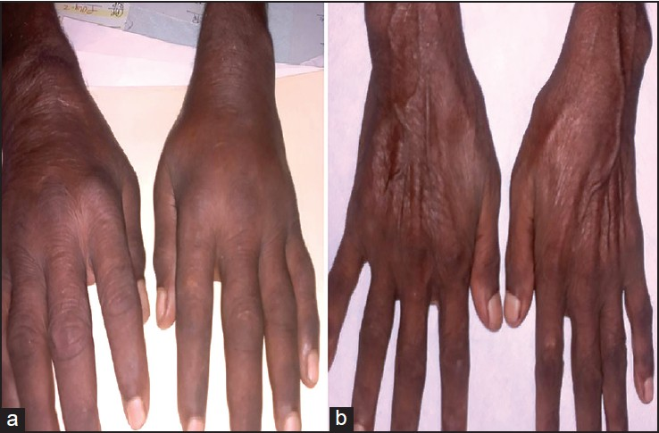 Figure 1: (a) Clinical photograph of the patient showing diffuse edema over the dorsum of the hands (boxing glove appearence) (b) Clinical photograph of the patient after three weeks of treatment, with complete resolution of the symptoms and signs